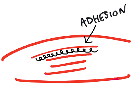 adhesion-between-muscles