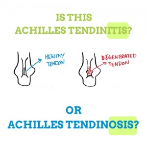 achilles-tendinitis-or-achilles-tendinosis