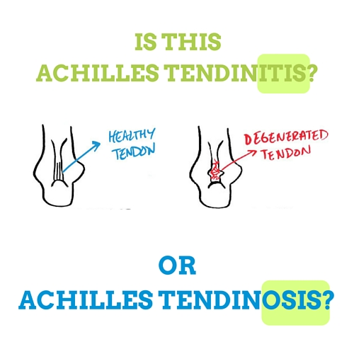 The Truth About Achilles Tendinitis (And Achilles Pain)