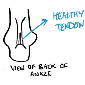 healthy-achilles-tendon
