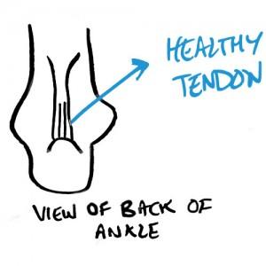 healthy-achilles-tendon