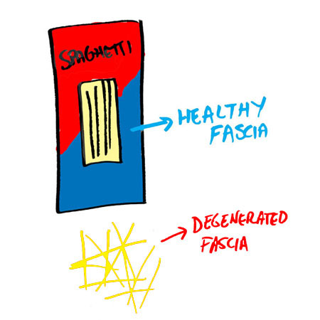 spaghetti-degenerated-fascia-or-tendon