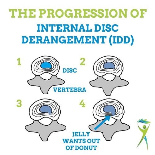 internal-disc-derangement