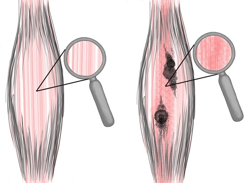 piriformis-syndrome-treatment-adhesion