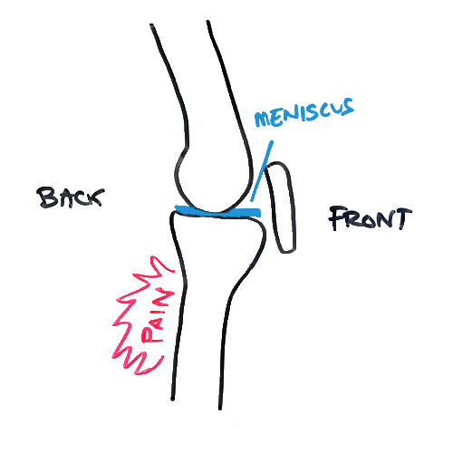 pain-behind-knee-meniscus