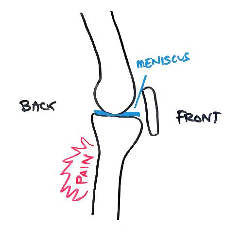 pain-behind-knee-meniscus