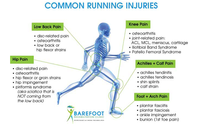 Common knee issues diagram auto wiring diagram today avoid the most common running injuries rh barefootrehab com knee ligament diagram knee ligament diagram ccuart Choice Image