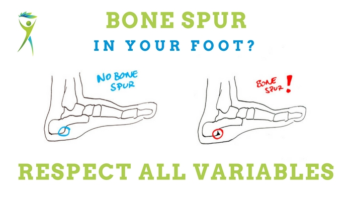 Bone-spur-in-the-foot