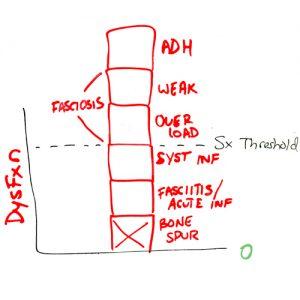 bone-spur-dysfunction-blocks