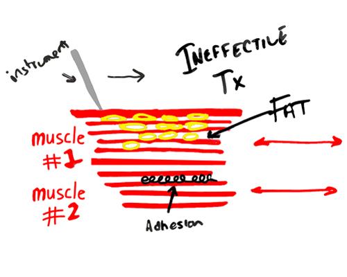 graston-technique-fat-matters