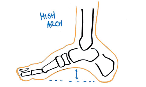 best-orthotics-are-casted-in-the-high-arch-position