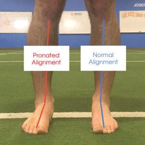 best-orthotics-pronated-ankle-alignment
