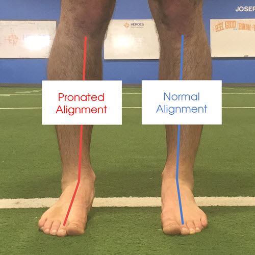 best-orthotics-pronated-ankle-alignment