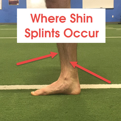 where-does-shin-splints-occur