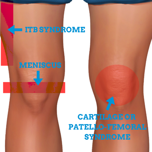 Knee-Injuries-From-Running-