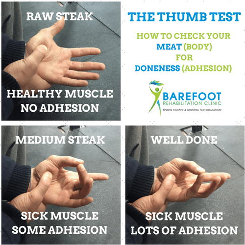 thumb-test-for-adhesion-low-back-pain-treatment