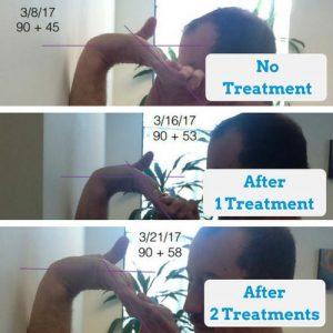 Wrist-Extension-Progress