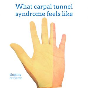 carpal-tunnel-syndrome-front-hand