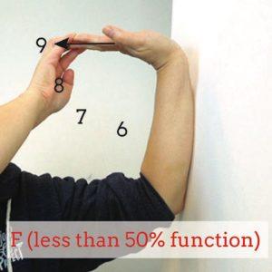 failing-wrist-extension-test