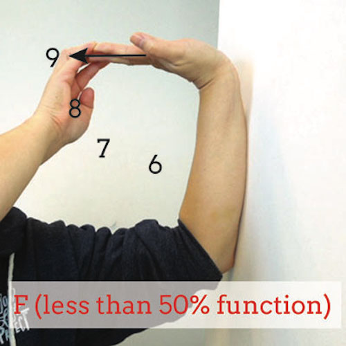 failing-wrist-extension-test