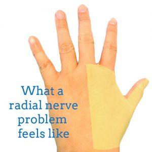 radial-nerve-back-hand