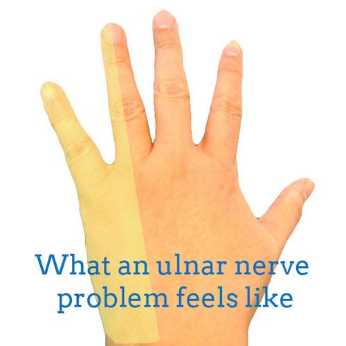 ulnar-nerve-back-hand