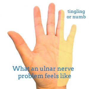 ulnar-nerve-front-hand