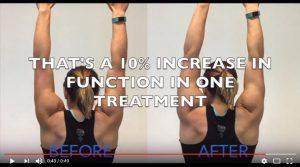 shoulder-pain-relief