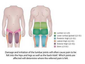 back-pain-referral-patterns