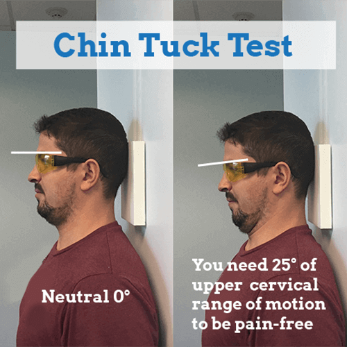 cervical-discography-chin-tuck-test