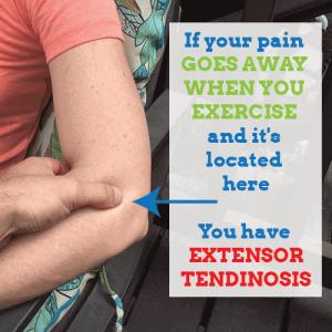 extensor-tendinosis