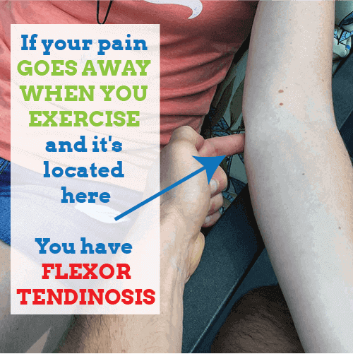 elbow-flexor-tendinosis