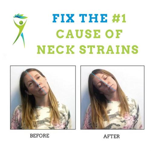 Neck-Strain-Treatment