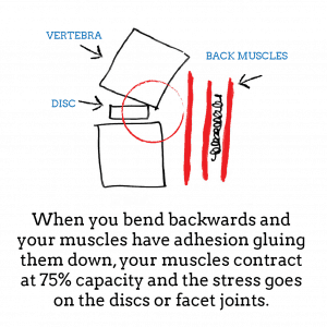 back-pain-when-bending-backwards-2
