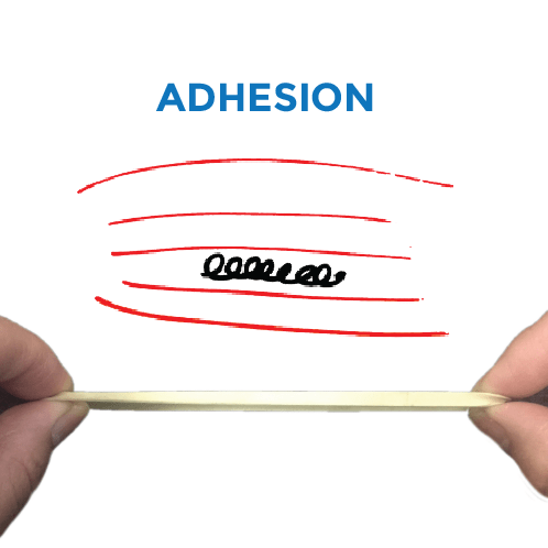 treating-adhesion