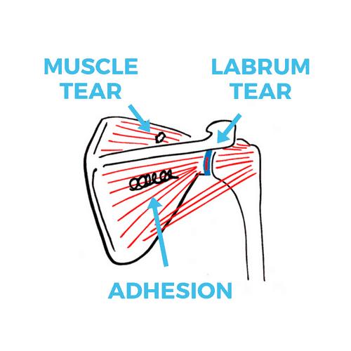 shoulder-pain-causes-3-problems