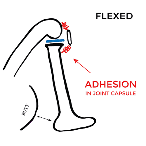 pain-on-inside-of-knee-Flexed-adhesion
