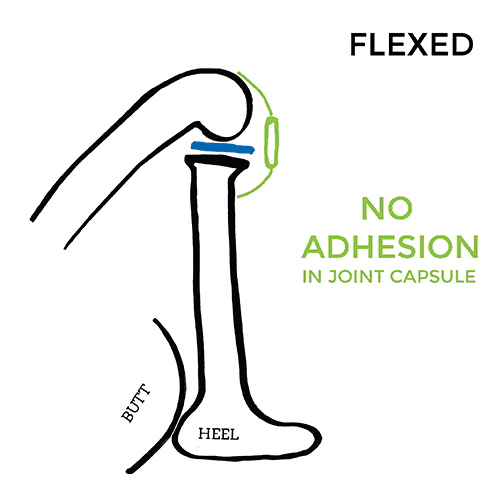 pain-on-inside-of-knee-Flexed-no-adhesion