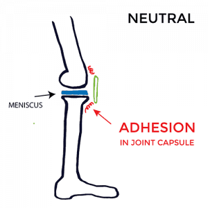 pain-on-inside-of-knee-Neutral-adhesion