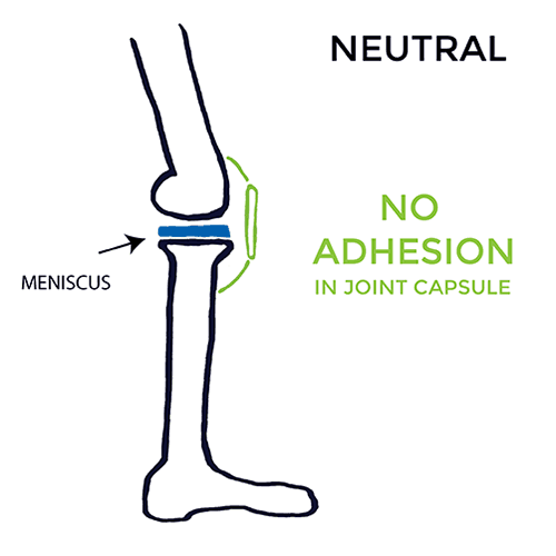 pain-on-inside-of-knee-Neutral-no-adhesion