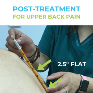 Upper-back-pain-pOST-treatment