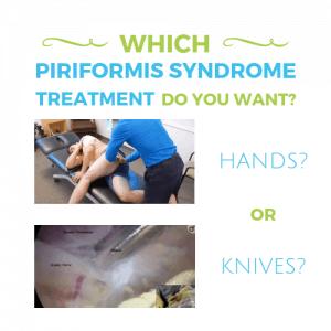 Piriformis-Syndrome-Treatment