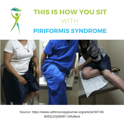Piriformis-Syndrome-Treatment-How-You-Sit
