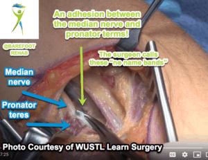 myofascial-release-median-nerve